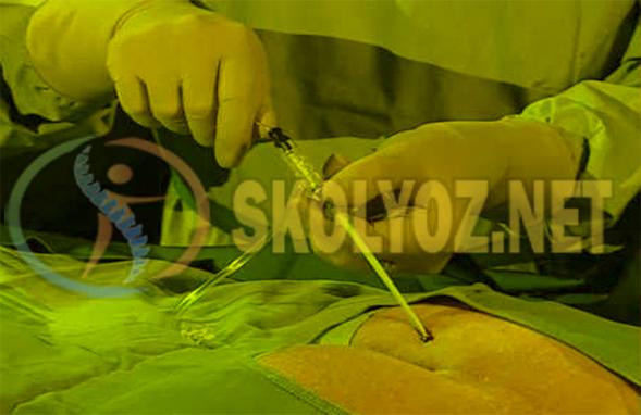 Laser Bel Fıtığı Tedavisi