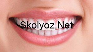 20'lik Dişler Çekilmeli Mİ?
